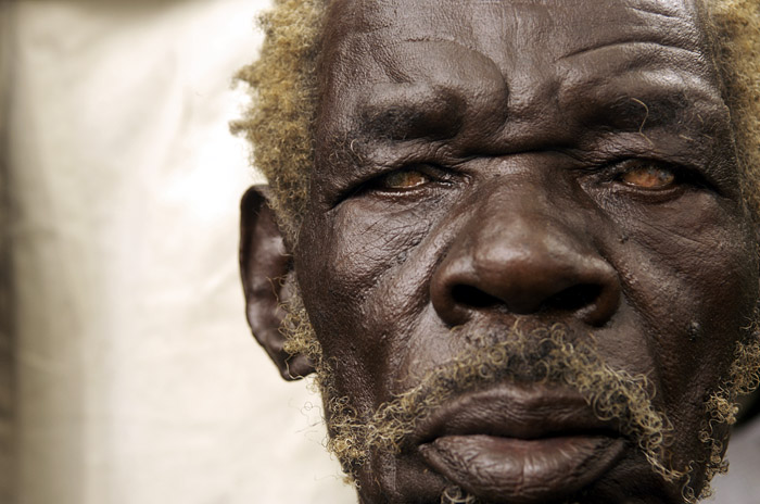 Man with cataracts, Lira, Uganda
