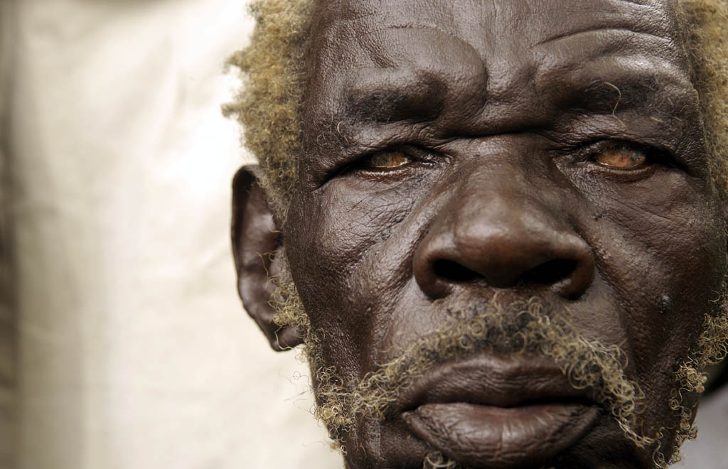 Man with cataracts, Lira, Northern Uganda.